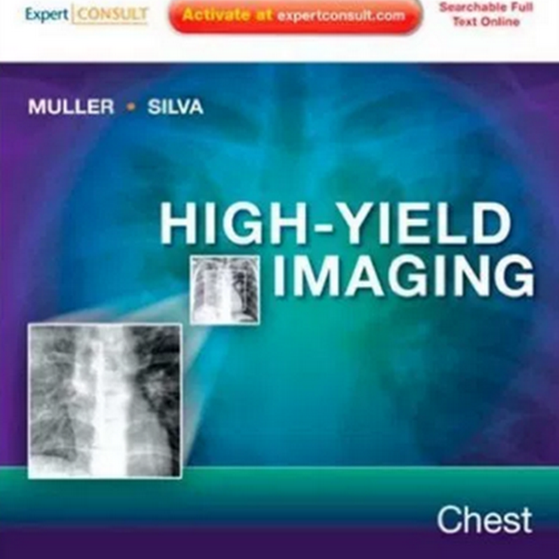 High-Yield Imaging: Chest, 1e (HIGH YIELD in Radiology) 1st Edition