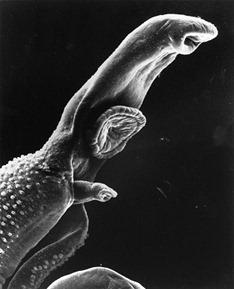 schistosome