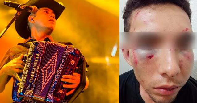 Al cantante Grupero Remmy Valenzuela se le paso el perico, golpea su primo a puñetazos y a su novia se la judío con cable de luz
