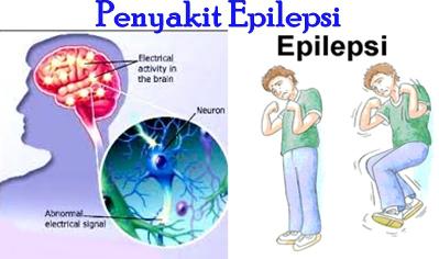 Cara Mengobati Ayan Epilepsi