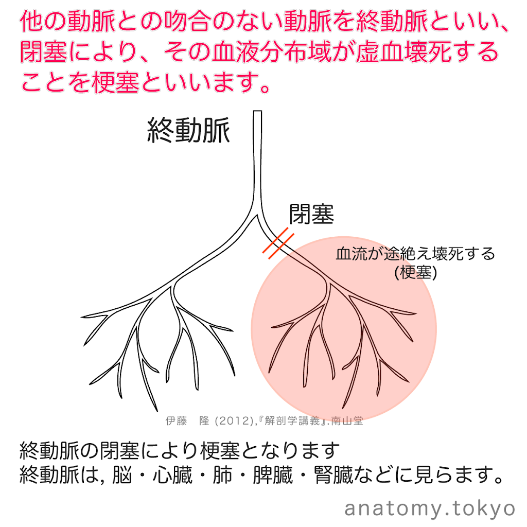 t212-18-終動脈-梗塞.png