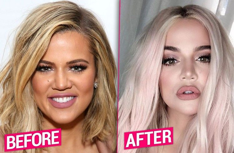 Khloe Kardashian confirms she's had a nose job and fillers as she addresses the intense criticism of her appearance on 'KUWTK' Reunion Special