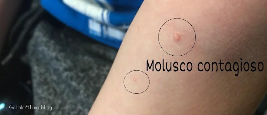 cómo es un molusco contagioso