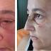 MULHER É ATACADA COM BEXIGA D'ÁGUA, LEVA PONTOS E PEGA INFECÇÃO OCULAR