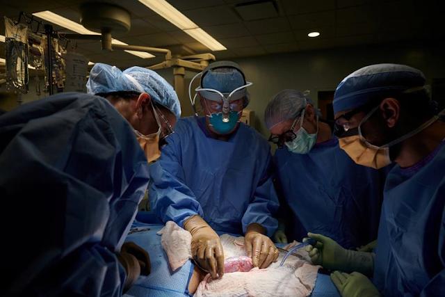 Histórico: trasplantaron un riñón de cerdo a un cuerpo humano y funcionó