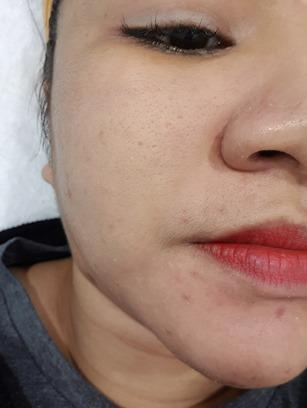 illy ariffin com: LASEMD Lutronic Skin Laser Treatment