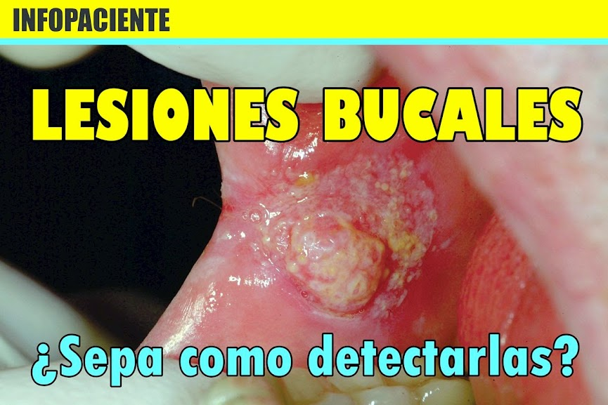 Lesiones Bucales