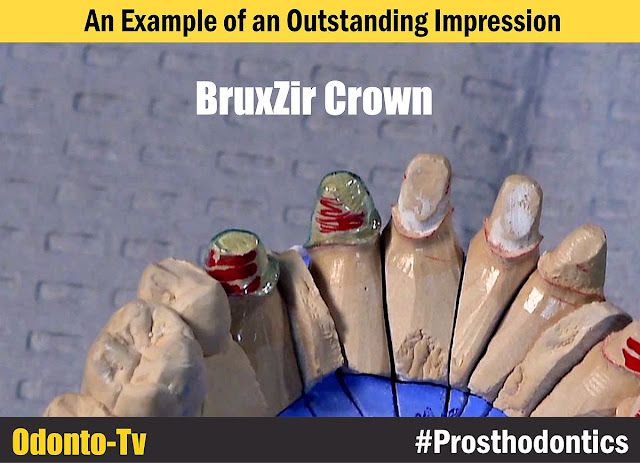 Outstanding-Impression
