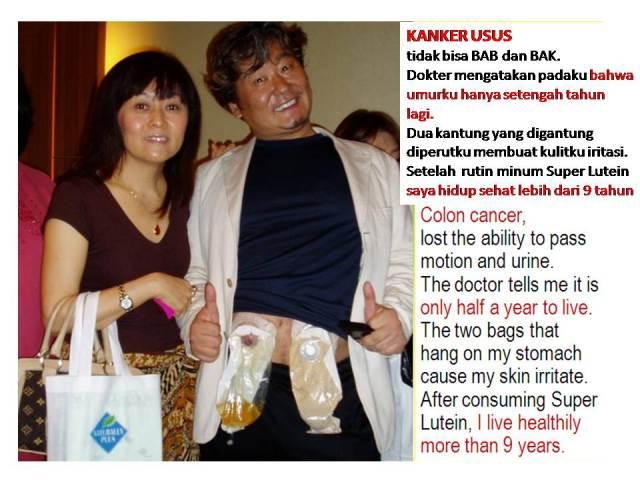 Super Lutein (S.Lutena) Obat Herbal Sembuhkan Kanker Usus