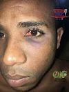 """Joven residente en el sector """"La esperanza"""" del municipio de Bayaguana fue brutalmente torturado por confusión por agentes de la Policia Nacional."""