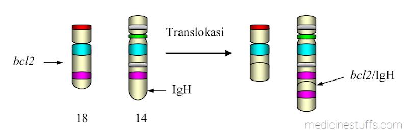 gambar-4-translokasi-bcl-2-dari-kromosom-18-ke-kromosom-14-pada-lokasi-gen-IgH-terjadi-pada-limfoma-folikuler