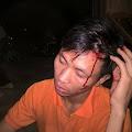 SOS: Cựu Tù Nhân Lương Tâm Trần Minh Nhật bị công an Lâm Hà ném đá vỡ đầu