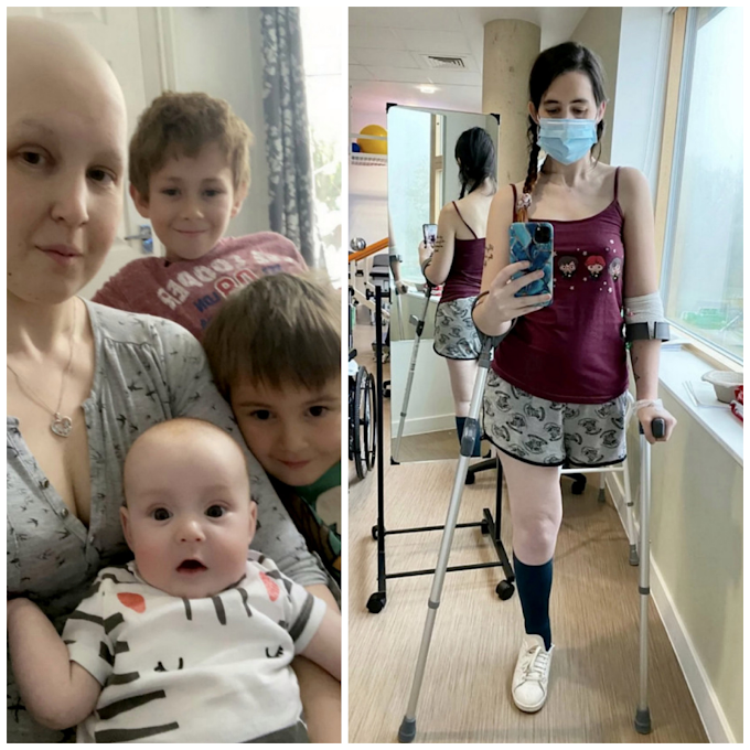 Pregnant mum chooses to amputate leg after cancer diagnosis to save unborn baby (photos)