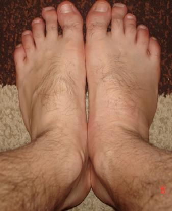 mi sa umflat piciorul si ma doare