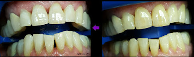 """הלבנת שיניים מיידית במרפאה תוך שעה - אסתטיקה דנטלית, ד""""ר גיא וולפין"""