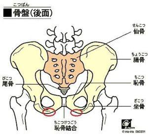座骨神経痛-痛い箇所図解2
