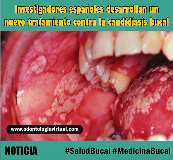 candidiasis-bucal