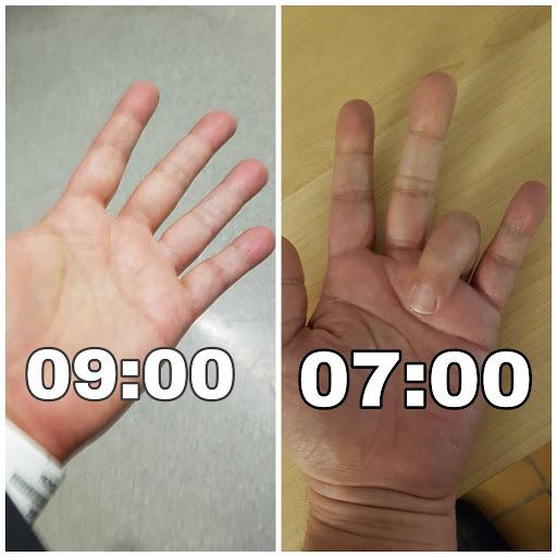 a jobb kéz gyűrűs ujja fáj