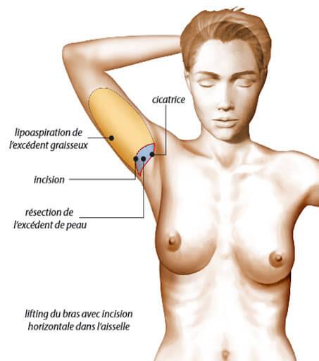 chirurgie esthétique des bras cicatrice