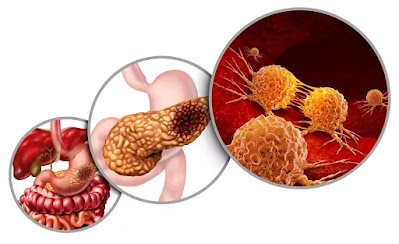 Are stomach cancer symptoms constant