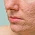 Phương pháp điều trị sẹo rỗ prp có thành công không?
