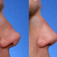 Rhinoplasty Before And After post image
