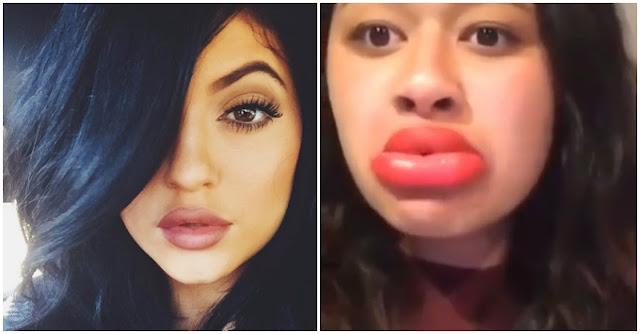 Menina usa técnica secreta para ter os lábios de Kylie Jenner e dá-se mal