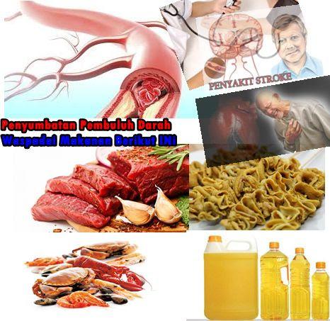 Obat Herbal Untuk Pembuluh Darah Tersumbat