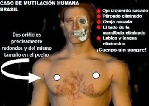 La Ms Preocupante Del Fenmeno Abduccin La Mutilacin Humana