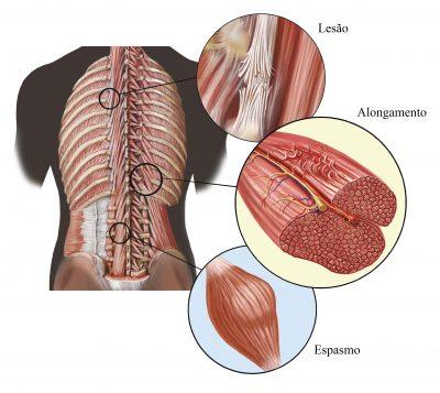 Contraccion muscular involuntaria y brusca