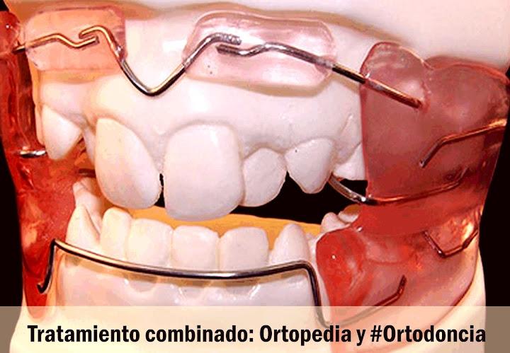 ortopedia-maxilar