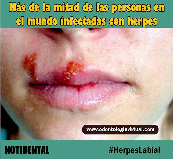 herpes-labial-oms