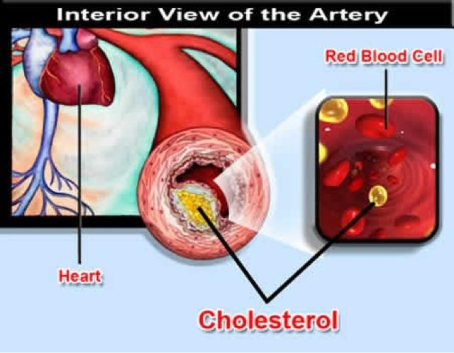 Kolestrol penyebab serangan jantung