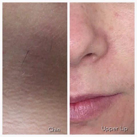 Purejoy Laser & Advanced Skincare - Laser Hair Removal and Treatment of Thread Veins
