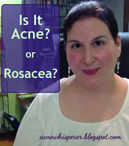 Do you experience constant redness with what look like acne breakouts?  You may be assuming you have rosacea, but it may really be adult acne, or you may have adult acne but assume it's rosacea.  Find out how to tell!