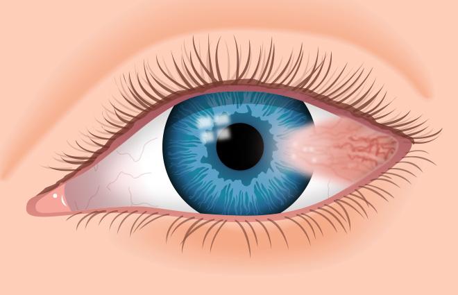 Cara Menghilangkan Endapan Lemak di Kelopak Mata