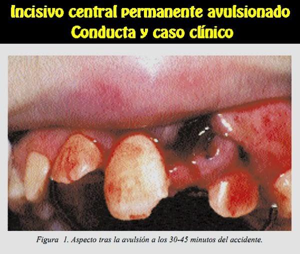 avulsion-dental