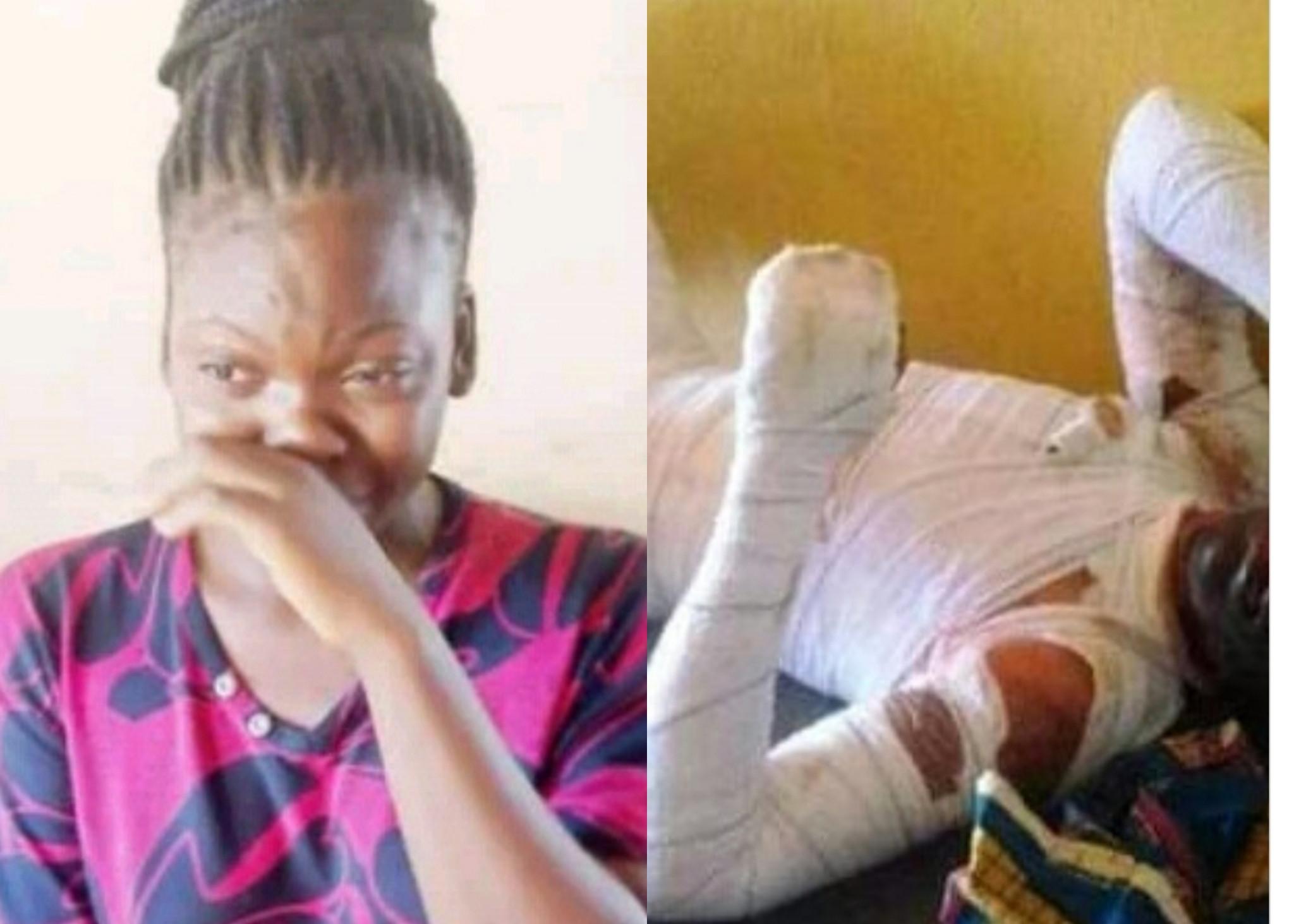 He made me abort three pregnancies -17-year-old girl who set her boyfriend ablaze in Benue