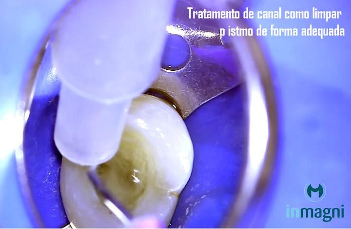 tratamento-endodontia