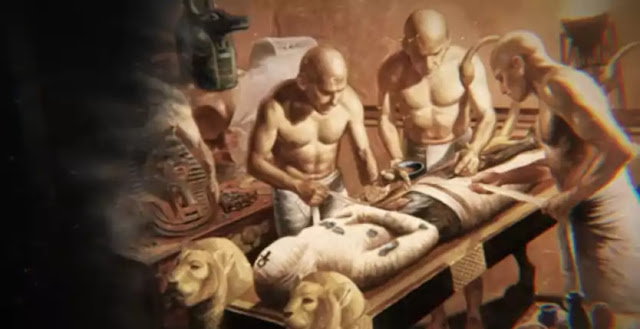 Post-Mortem dissection was common in ancient egypt