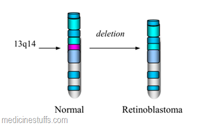 deletin-pada-kromosom-13q14
