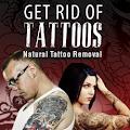 Get Rid Tattoos