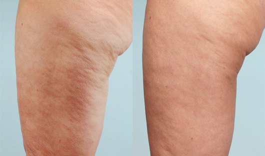 traitement anti cellulite laser