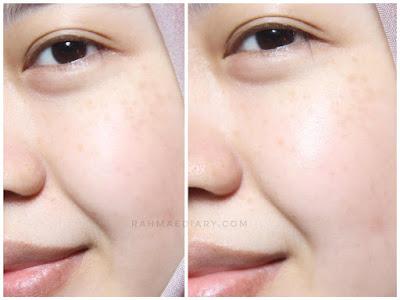 eBright Skin