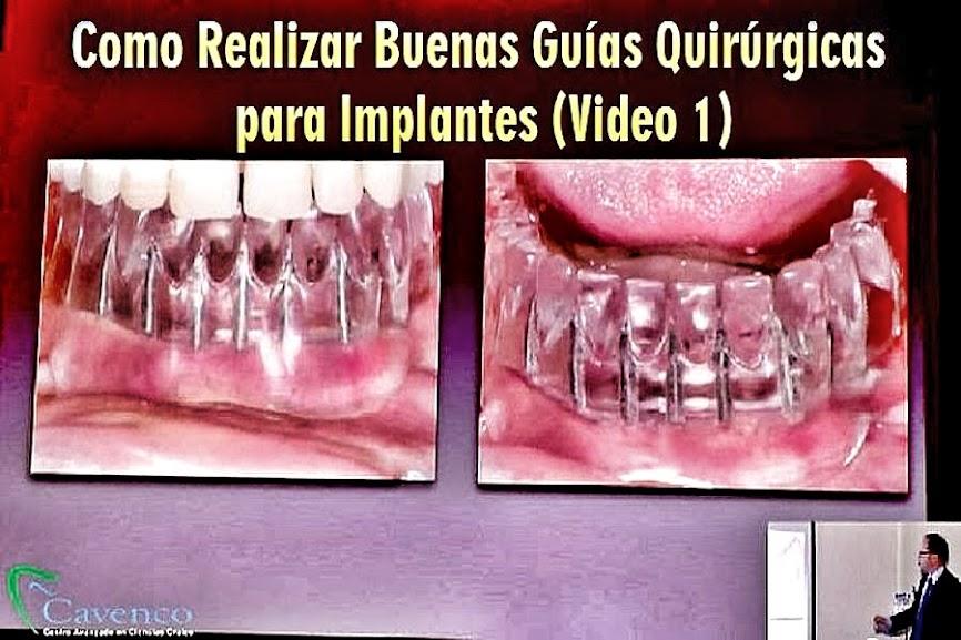 guias-quirurgicas