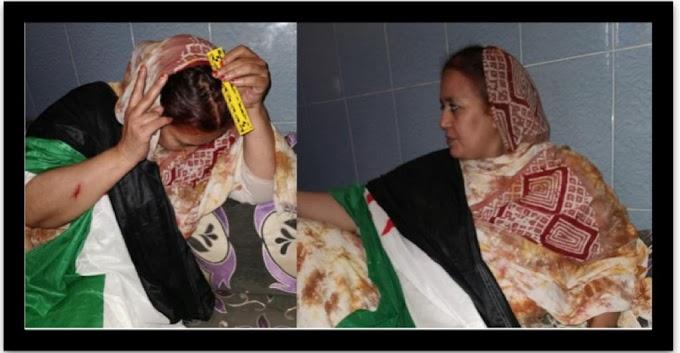 Fuerzas de ocupación marroquíes reprimen con violencia, en su domicilio, a mujeres saharauis en Bojador