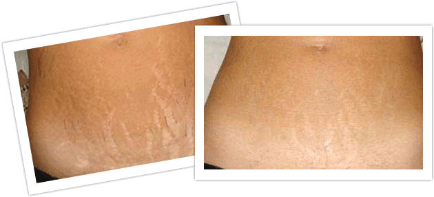 revitol stretch mark prevention cream review