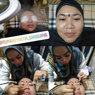 Treatment DELUXE Package RSSS Bikin Happy