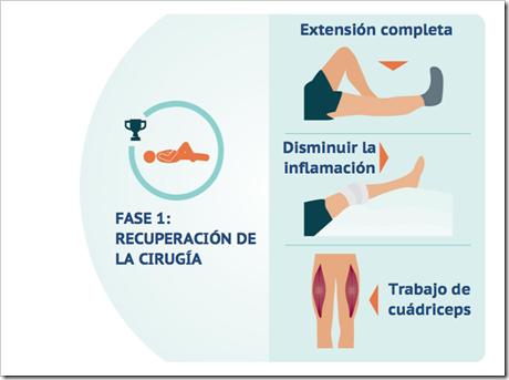 1 Rehabilitación del Ligamento Cruzado Anterior LCA en Pádel en cinco fases basado en objetivos.