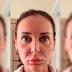 """Mulher usa medicamento inédito para beleza e fica com """"rosto de múmia"""""""